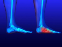 Athletes and Flat Feet